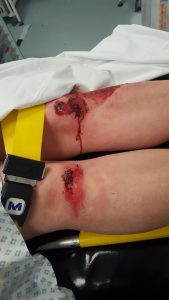 Toni's knees immediately after the accident